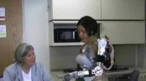 La prima donna con un braccio bionico