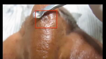 Giperplaziya di ghiandole sebaceous su un trattamento di faccia