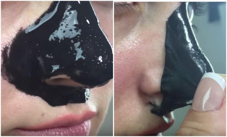 Che esso è possibile guarire leruzione di acne su una faccia