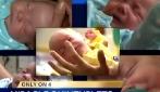 """""""Lei non potrà mai avere figli"""": la donna partorisce 5 gemelli"""