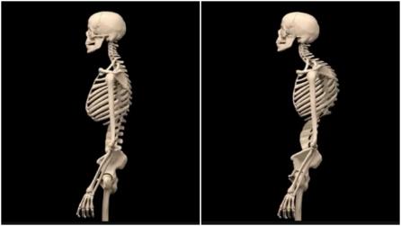 Trattamento applicato di una spina dorsale