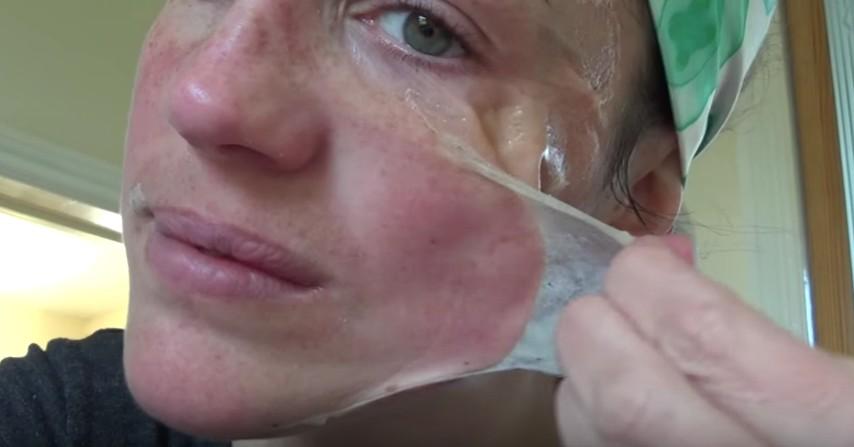 Le maschere che tolgono cicatrici da posti sulla faccia