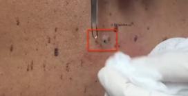 Un punto nero gigantesco: la dermatologa tira fuori le impurità