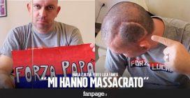 """Luca Fanesi, parla il tifoso aggredito uscito dal coma: """"Voglio sapere chi mi ha massacrato"""""""