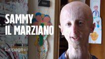 """Sammy Basso, una vita con la progeria: """"Studio una ricerca per fare del bene agli altri"""""""