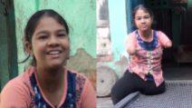 La storia di Naseeba, malata di Focomelia, è cresciuta senza braccia e senza gambe