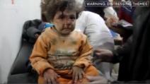 Aleppo, il dolore e il terrore negli occhi dei bambini
