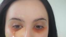 Il rimedio per eliminare i brufoli dal viso in 60 secondi