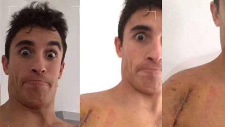MotoGp, Marquez mostra la spalla sui social