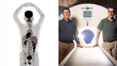 Le prime immagini dello scanner Explorer, che analizza l'intero corpo umano in pochi secondi