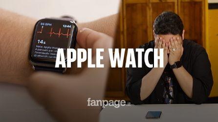 Ho fatto un elettrocardiogramma con l'Apple Watch