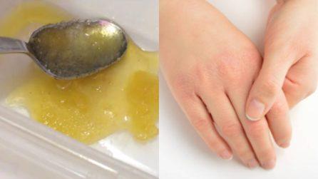 Mani secche e screpolate: il rimedio naturale per averle lisce e morbide