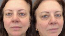 Occhi bellissimi ma tristi: dopo il make up la trasformazione è stupenda