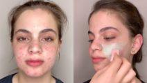 L'acne le ricopre gran parte del viso: per un giorno il truccatore lo fa sparire