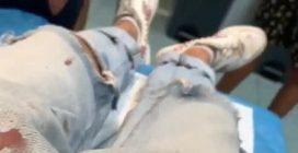 Denis Dosio in ospedale a Mykonos con i jeans sporchi di sangue