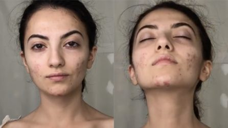 Nel giorno più importante della sua vita vorrebbe che l'acne sparisse: la trasformazione