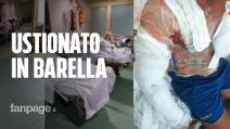 Giovane ustionato gravemente, in barella da giorni al Cardarelli