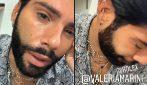 Federico Fashion Style derubato del suo rolex si mostra in lacrime su Instagram