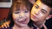 Make-up artist trucca la madre per cancellare dal volto i segni della sua malattia