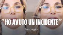 """Incidente per Barbara D'Urso, investita da una lastra di cristallo: """"Insensibilità a braccio e mano"""""""