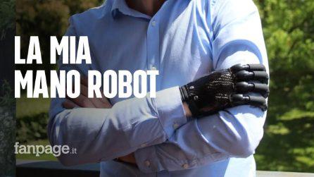 """Marco e la sua mano robot: """"Il sogno di ogni bambino: ora sono un po' cyborg"""""""