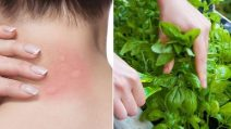Mosquito bites: 8 natural ways to relieve itching
