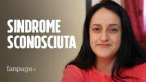 """Venezia, i figli di Carla affetti da sindrome sconosciuta: """"La loro testolina cresce a dismisura"""""""