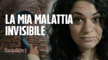 """Laura e la Fibromialgia, la malattia invisibile: """"Ho oltre 100 sintomi, da 4 anni non vivo più"""""""